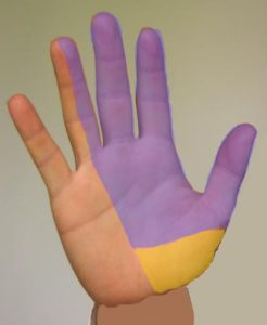 Numbness Pattern for Median Nerve Median Nerve Splits – Yellow Portion Does Not Go Through the Carpal Tunnel.